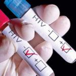 Enfermedades de transmisión sexual, VIH y práctica del sado