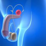 lesiones genitales por practicar CBT